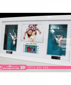 Đúc khuôn tay chân 3D - BS04