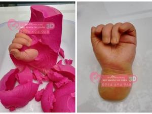 Nguyên vật liệu dùng để đúc khuôn tay chân 3D